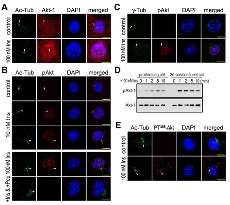 Growth arrest induces primary-cilium formation and
